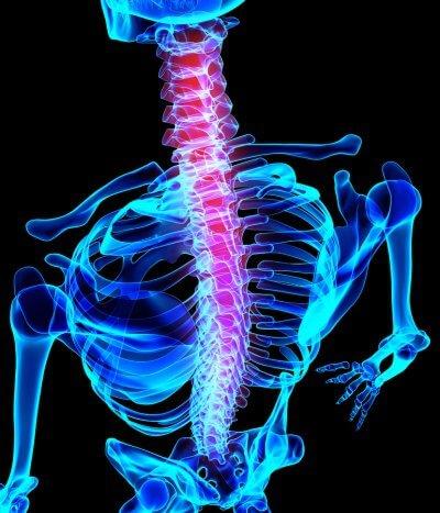 3d image of inflamed spine